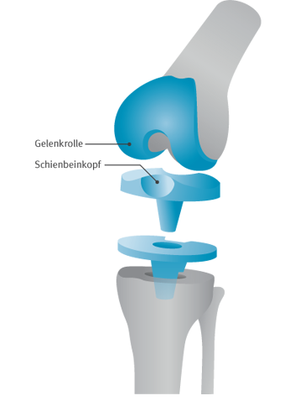Abbildung 2: Bikompartimentelle Prothese
