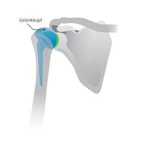Abbildung 2: Kappenprothese