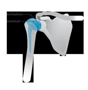 Abbildung 3: Gesamtprothese