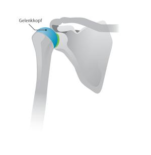 Abbildung 1: Kappenprothese