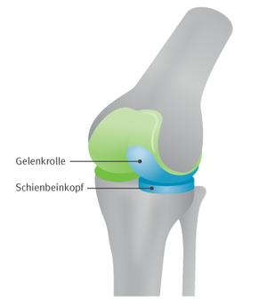 Abbildung 1: Schlittenprothese